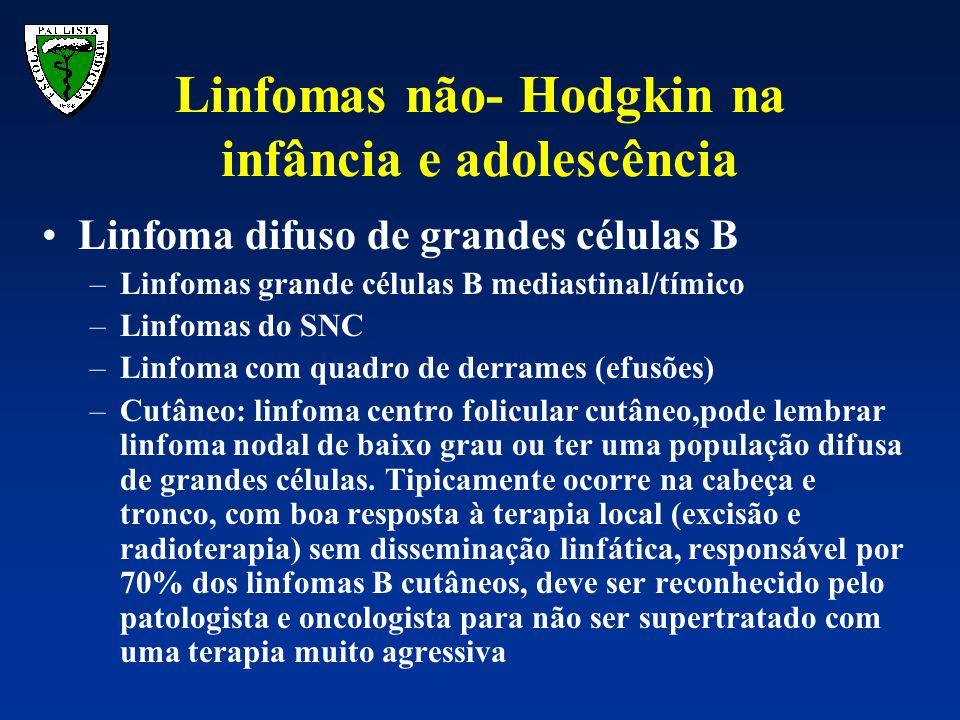 Linfomas não- Hodgkin na infância e adolescência Linfoma difuso de grandes células B –Linfomas grande células B mediastinal/tímico –Linfomas do SNC –L