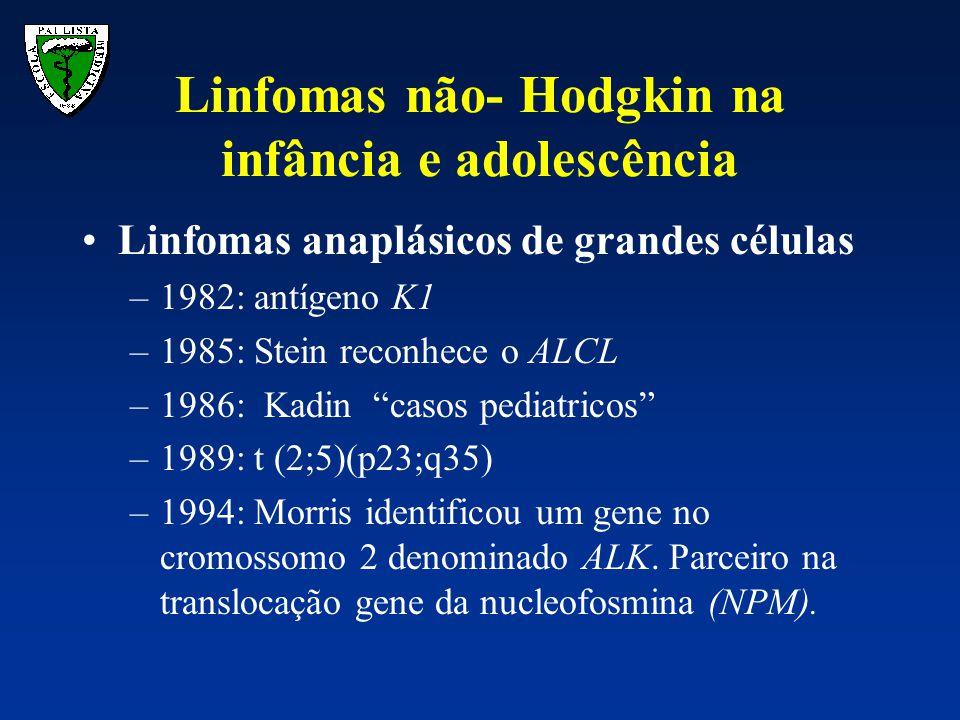 """Linfomas anaplásicos de grandes células –1982: antígeno K1 –1985: Stein reconhece o ALCL –1986: Kadin """"casos pediatricos"""" –1989: t (2;5)(p23;q35) –199"""