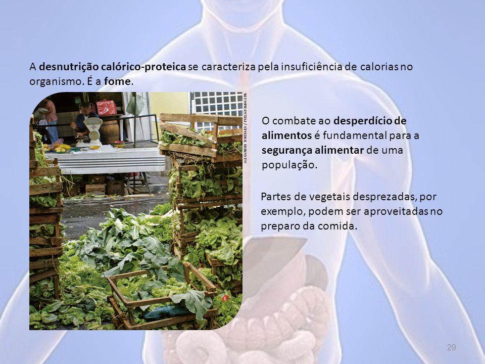 A desnutrição calórico-proteica se caracteriza pela insuficiência de calorias no organismo.