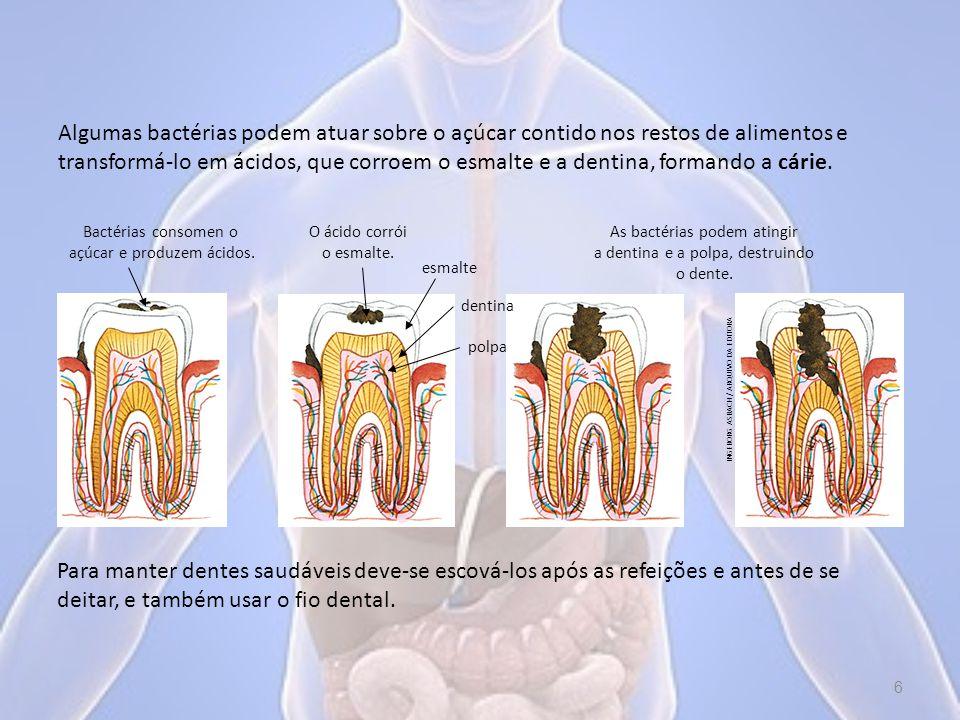 Algumas bactérias podem atuar sobre o açúcar contido nos restos de alimentos e transformá-lo em ácidos, que corroem o esmalte e a dentina, formando a cárie.