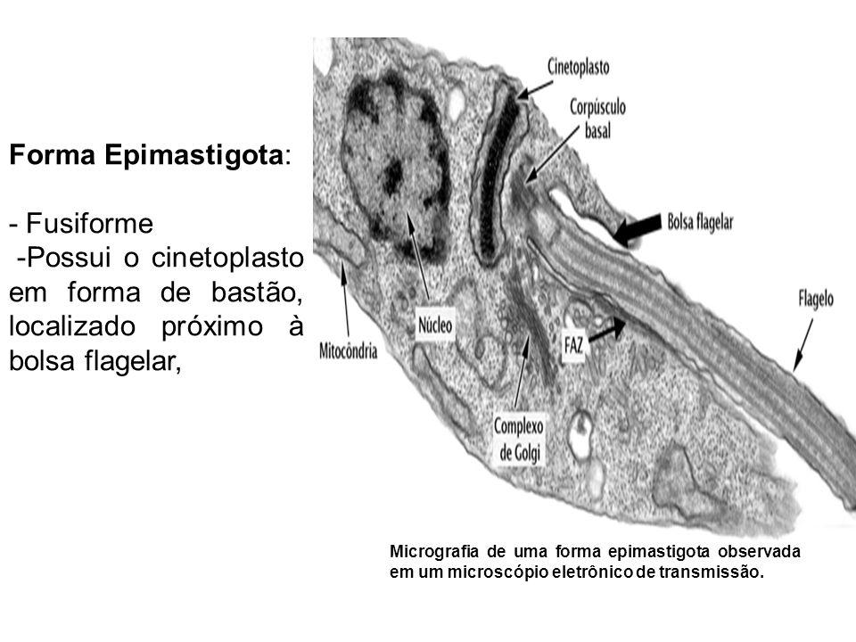Forma Epimastigota: - Fusiforme -Possui o cinetoplasto em forma de bastão, localizado próximo à bolsa flagelar, Micrografia de uma forma epimastigota