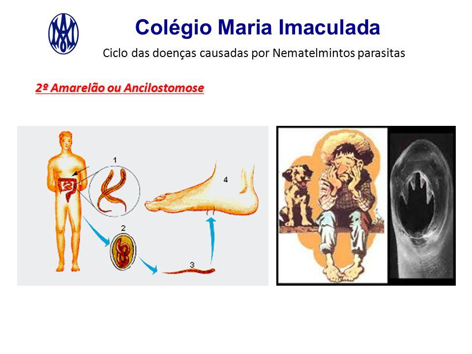 Colégio Maria Imaculada Ciclo das doenças causadas por Nematelmintos parasitas 2º Amarelão ou Ancilostomose