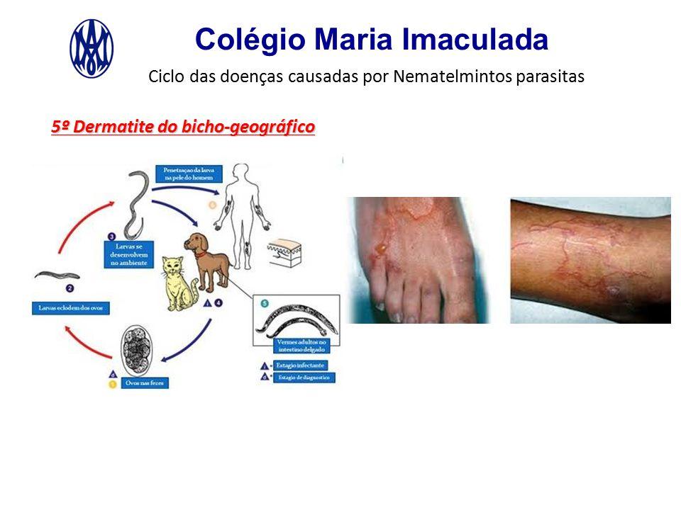 Colégio Maria Imaculada Ciclo das doenças causadas por Nematelmintos parasitas 5º Dermatite do bicho-geográfico
