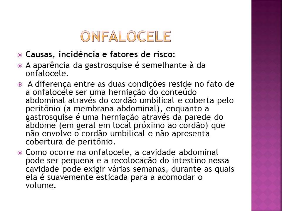  Causas, incidência e fatores de risco:  A aparência da gastrosquise é semelhante à da onfalocele.  A diferença entre as duas condições reside no f