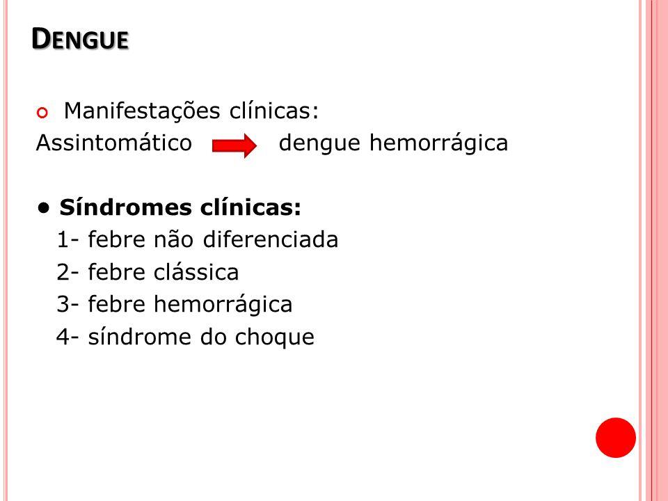D ENGUE Manifestações clínicas: Assintomático dengue hemorrágica Síndromes clínicas: 1- febre não diferenciada 2- febre clássica 3- febre hemorrágica