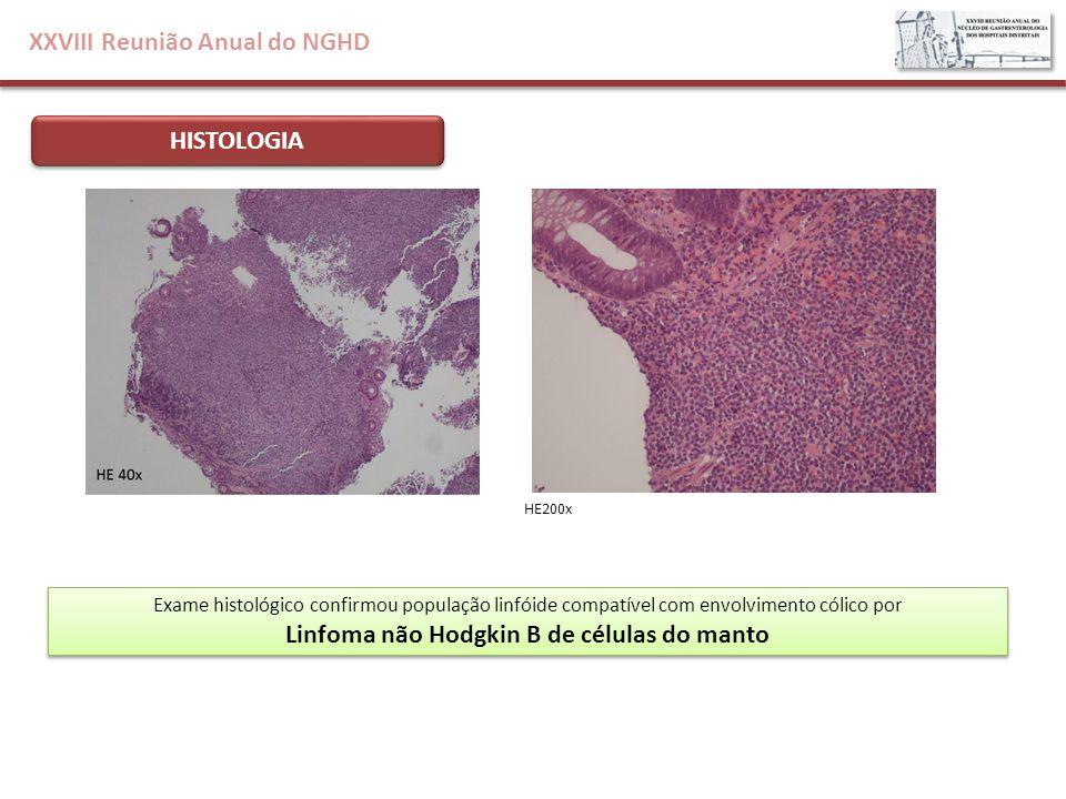 XXVIII Reunião Anual do NGHD HISTOLOGIA Exame histológico confirmou população linfóide compatível com envolvimento cólico por Linfoma não Hodgkin B de