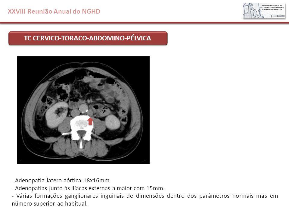 XXVIII Reunião Anual do NGHD TC CERVICO-TORACO-ABDOMINO-PÉLVICA - Adenopatia latero-aórtica 18x16mm. - Adenopatias junto às ilíacas externas a maior c