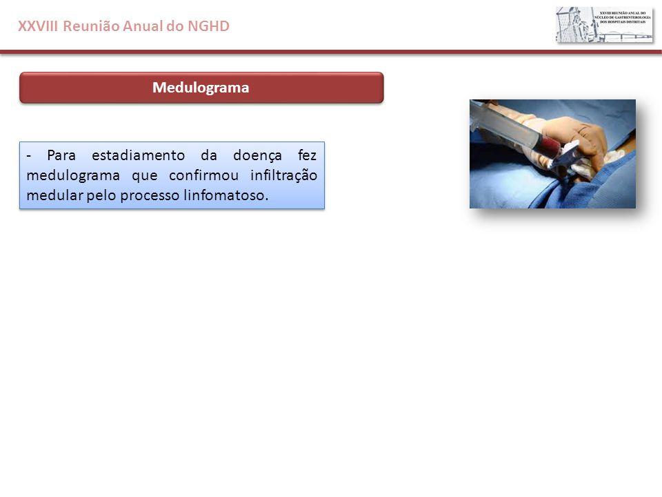 XXVIII Reunião Anual do NGHD Medulograma - Para estadiamento da doença fez medulograma que confirmou infiltração medular pelo processo linfomatoso.