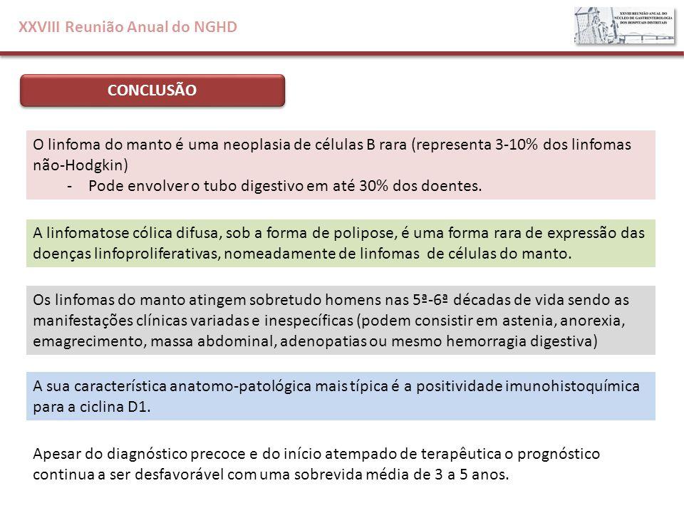XXVIII Reunião Anual do NGHD CONCLUSÃO O linfoma do manto é uma neoplasia de células B rara (representa 3-10% dos linfomas não-Hodgkin) -Pode envolver