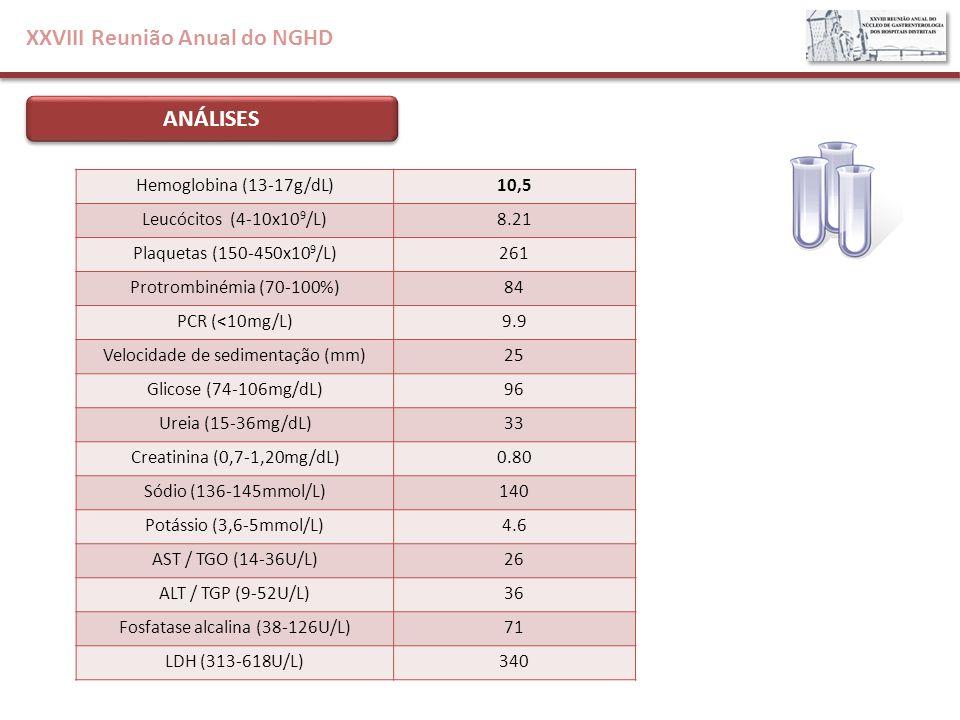 XXVIII Reunião Anual do NGHD ANÁLISES Hemoglobina (13-17g/dL)10,5 Leucócitos (4-10x10 9 /L)8.21 Plaquetas (150-450x10 9 /L)261 Protrombinémia (70-100%