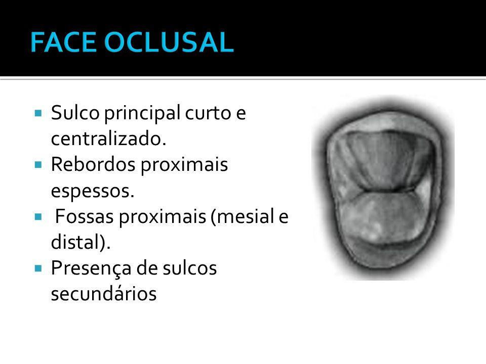  Sulco principal curto e centralizado.  Rebordos proximais espessos.  Fossas proximais (mesial e distal).  Presença de sulcos secundários