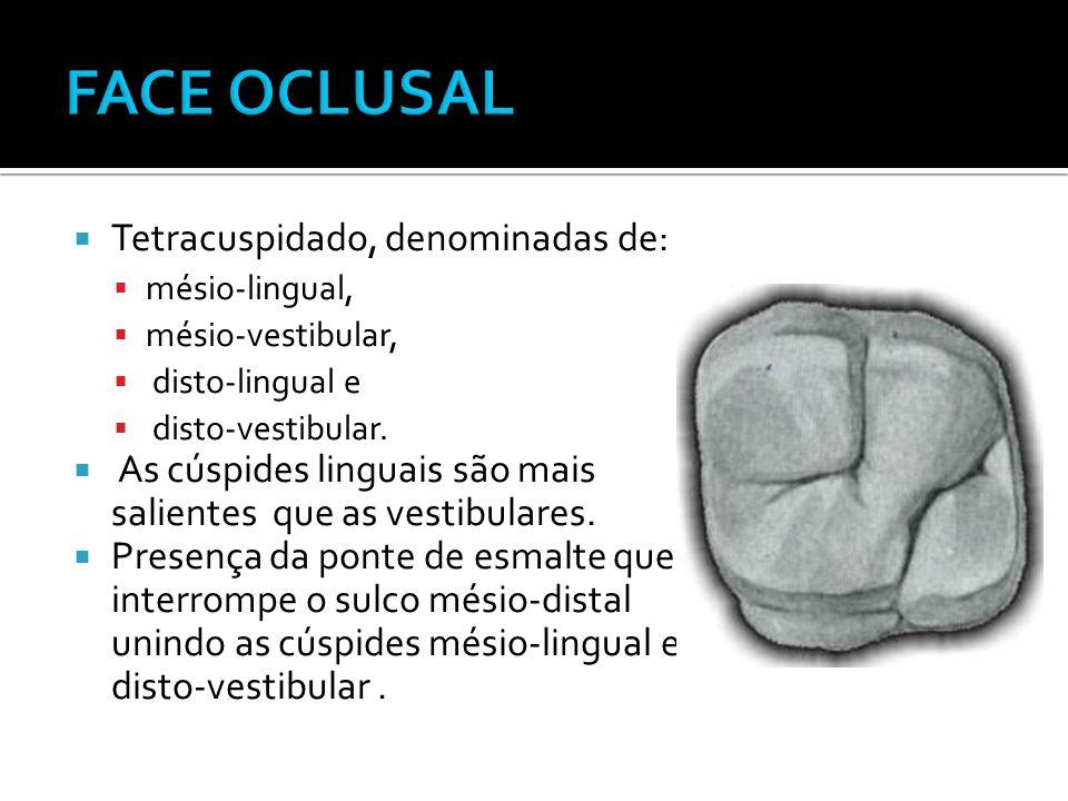  Tetracuspidado, denominadas de:  mésio-lingual,  mésio-vestibular,  disto-lingual e  disto-vestibular.  As cúspides linguais são mais salientes