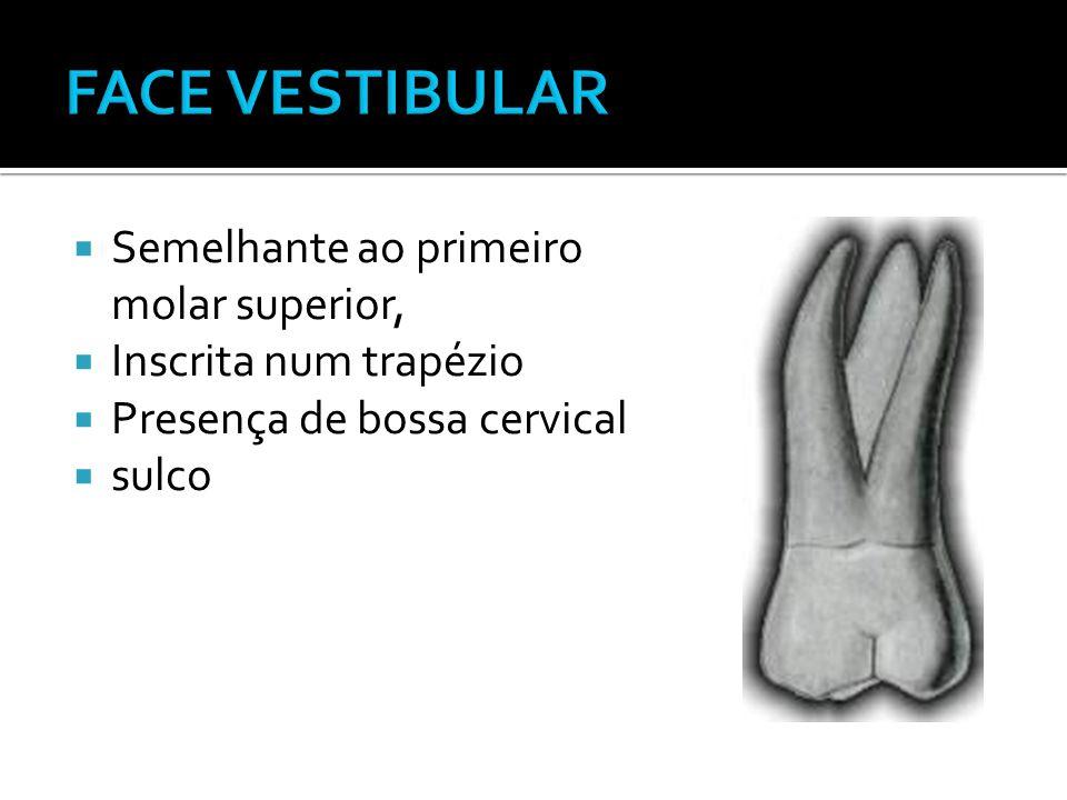  Semelhante ao primeiro molar superior,  Inscrita num trapézio  Presença de bossa cervical  sulco