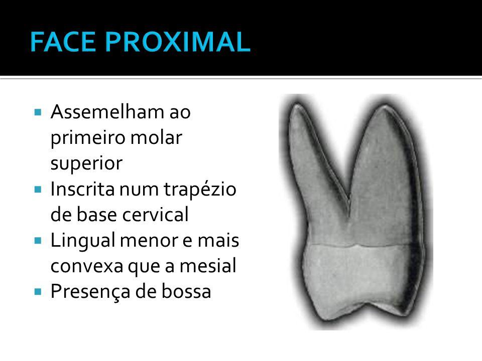  Assemelham ao primeiro molar superior  Inscrita num trapézio de base cervical  Lingual menor e mais convexa que a mesial  Presença de bossa