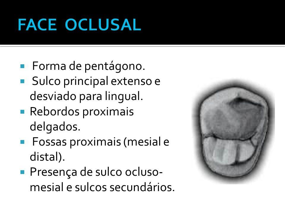  Forma de pentágono.  Sulco principal extenso e desviado para lingual.  Rebordos proximais delgados.  Fossas proximais (mesial e distal).  Presen