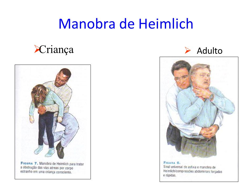 Manobra de Heimlich  Adulto  Criança