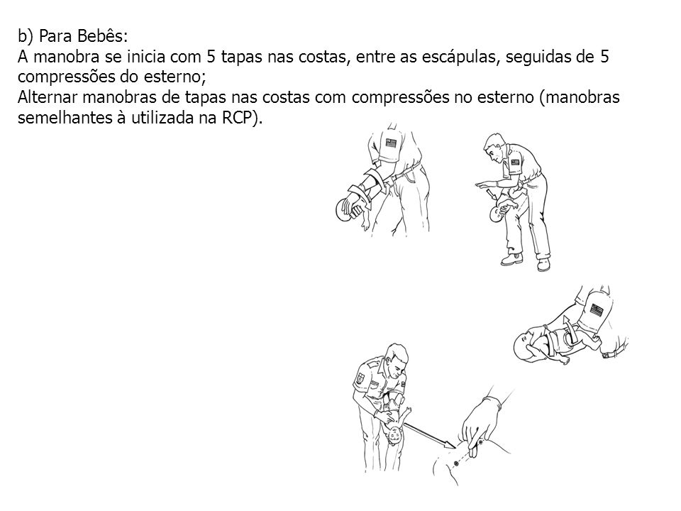 b) Para Bebês: A manobra se inicia com 5 tapas nas costas, entre as escápulas, seguidas de 5 compressões do esterno; Alternar manobras de tapas nas co