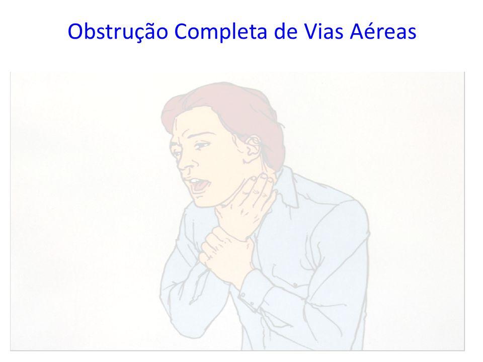 Obstrução Completa de Vias Aéreas – Incapaz de tossir, falar e respirar – Pescoço ingurgitado (Sinal Universal de Angústia) – Pele muito azulada (cian