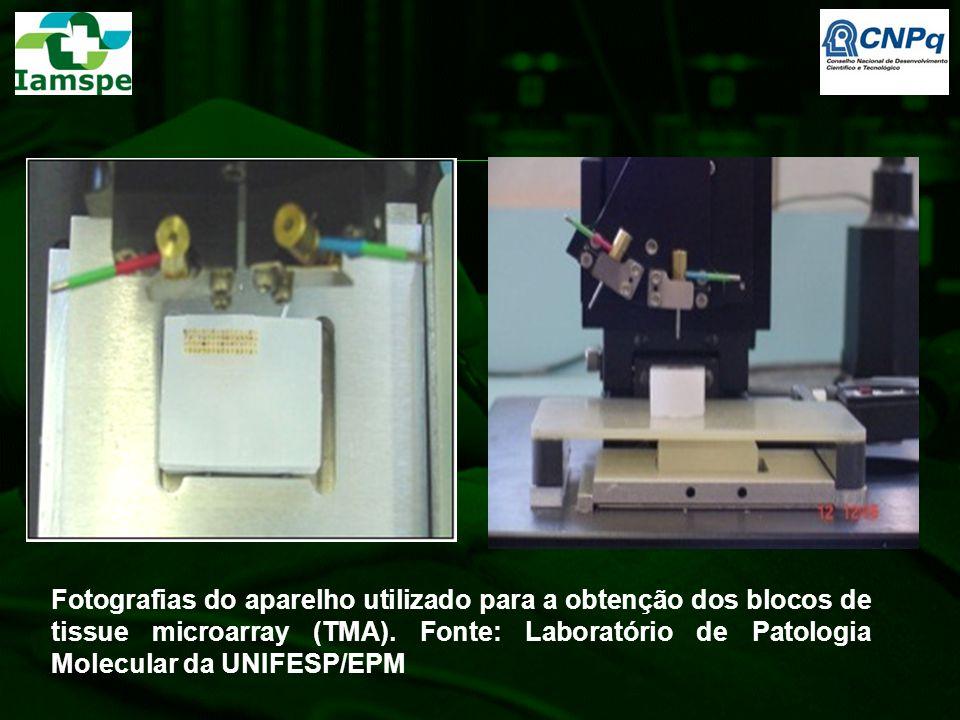 Fotografias do aparelho utilizado para a obtenção dos blocos de tissue microarray (TMA). Fonte: Laboratório de Patologia Molecular da UNIFESP/EPM
