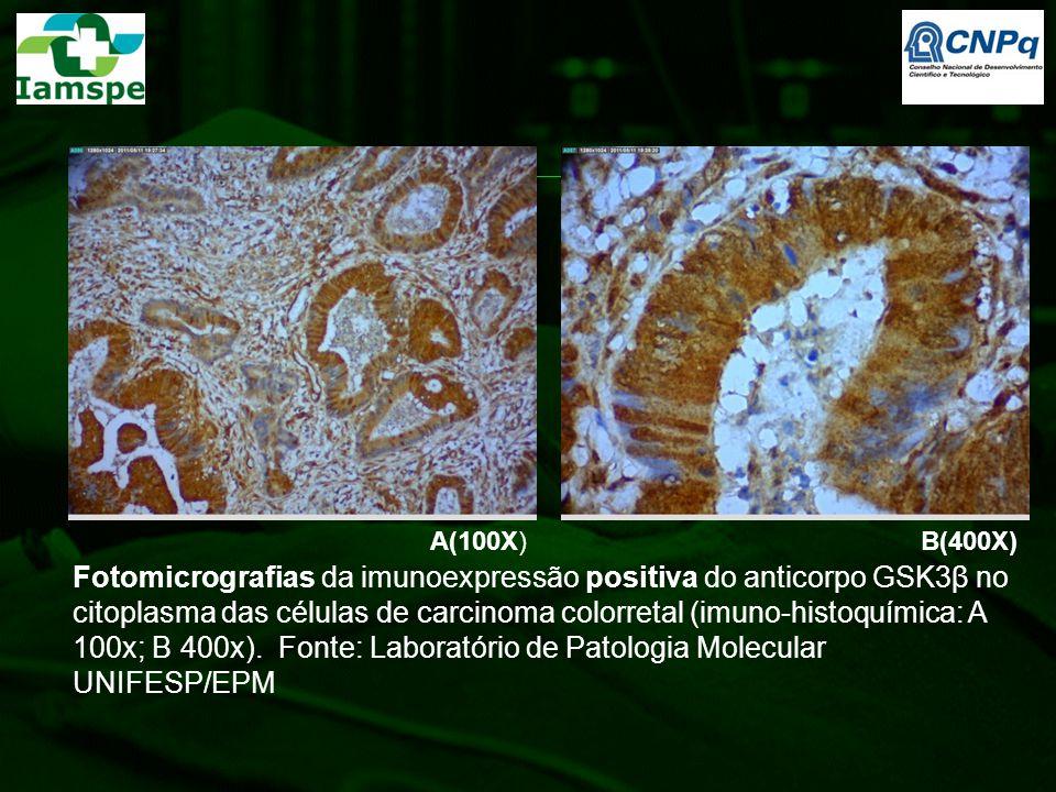 Fotomicrografias da imunoexpressão positiva do anticorpo GSK3β no citoplasma das células de carcinoma colorretal (imuno-histoquímica: A 100x; B 400x).
