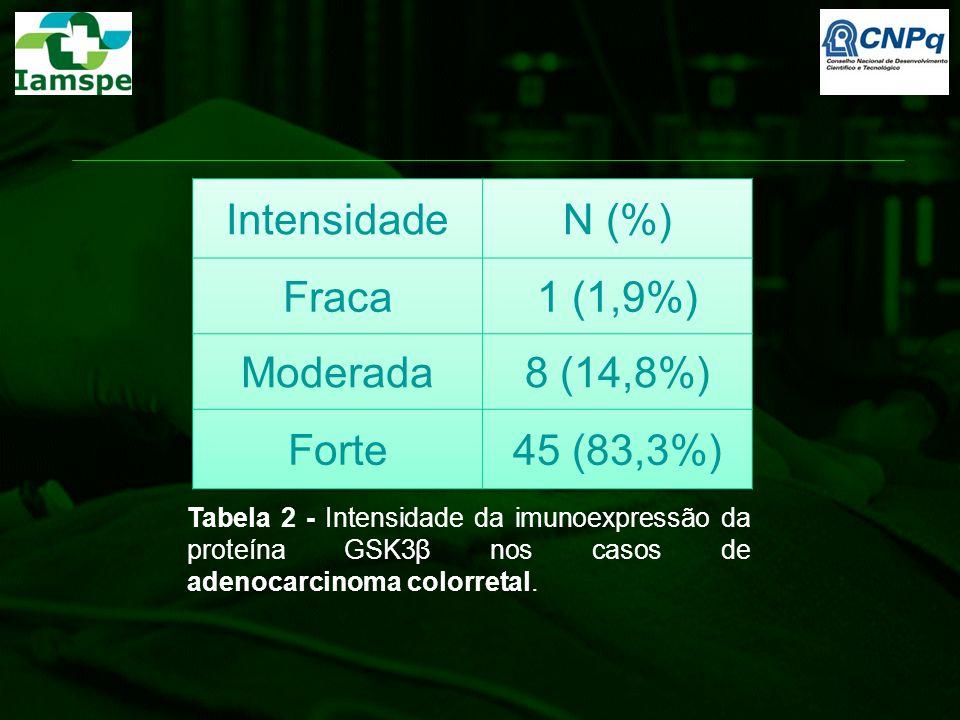 Tabela 2 - Intensidade da imunoexpressão da proteína GSK3β nos casos de adenocarcinoma colorretal.