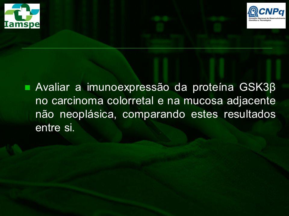 Análise Estatística Correlação de Spearman: escores de imunoexpressão da proteína GSK3β Teste t Student: significância de parâmetros clinico- patológicos Testes do qui-quadrado e de Mann-Whitney: demais parâmetros Testes de qui-quadrado e Exato de Fischer: associação da positividade na marcação das proteínas Teste de McNemar: comparação da imunoexpressão da proteína GSK3β na mucosa adjacente não neoplásica e no carcinoma colorretal (dados pareados)  p=1,00 SPSS versão 15.0 (The Predictive Analytics Company, Chicago, IL, USA)