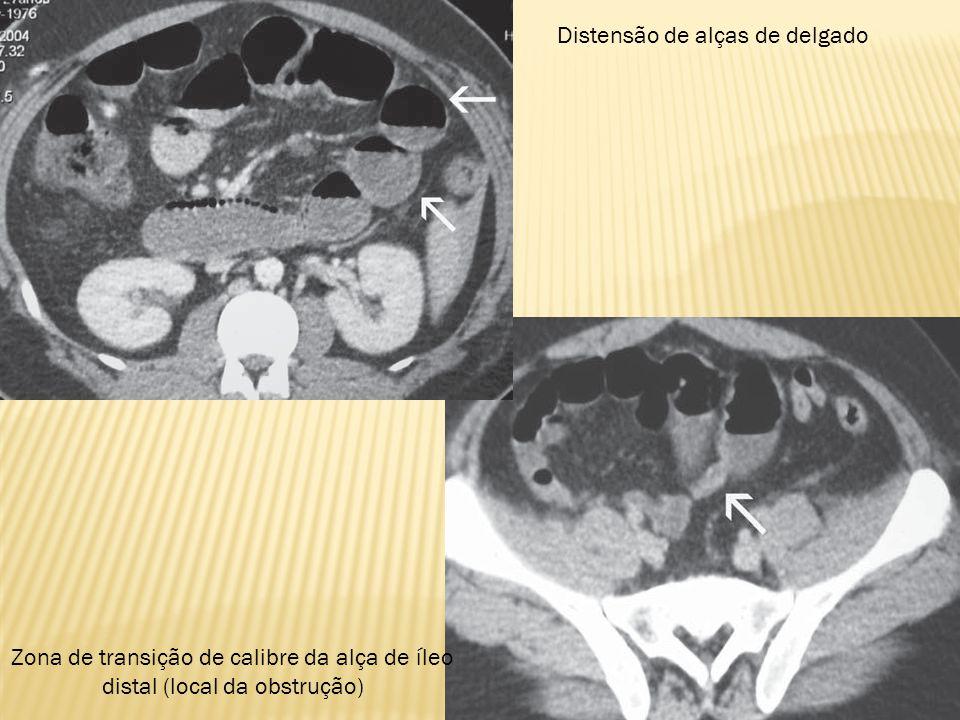 Zona de transição de calibre da alça de íleo distal (local da obstrução) Distensão de alças de delgado