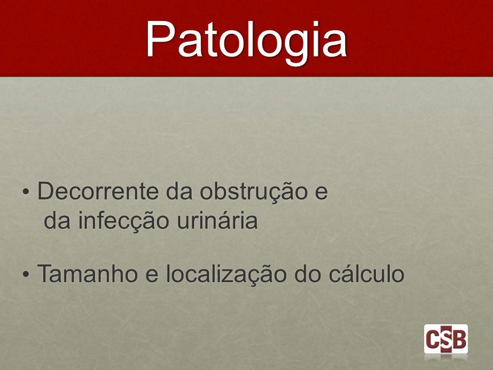 Patologia Decorrente da obstrução e da infecção urinária Decorrente da obstrução e da infecção urinária Tamanho e localização do cálculo Tamanho e loc
