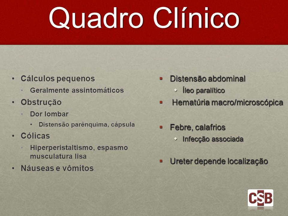 Quadro Clínico Cálculos pequenos Cálculos pequenos Geralmente assintomáticos Geralmente assintomáticos Obstrução Obstrução Dor lombar Dor lombar Diste