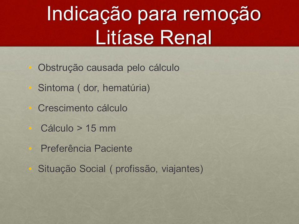 Indicação para remoção Litíase Renal Obstrução causada pelo cálculo Obstrução causada pelo cálculo Sintoma ( dor, hematúria) Sintoma ( dor, hematúria)