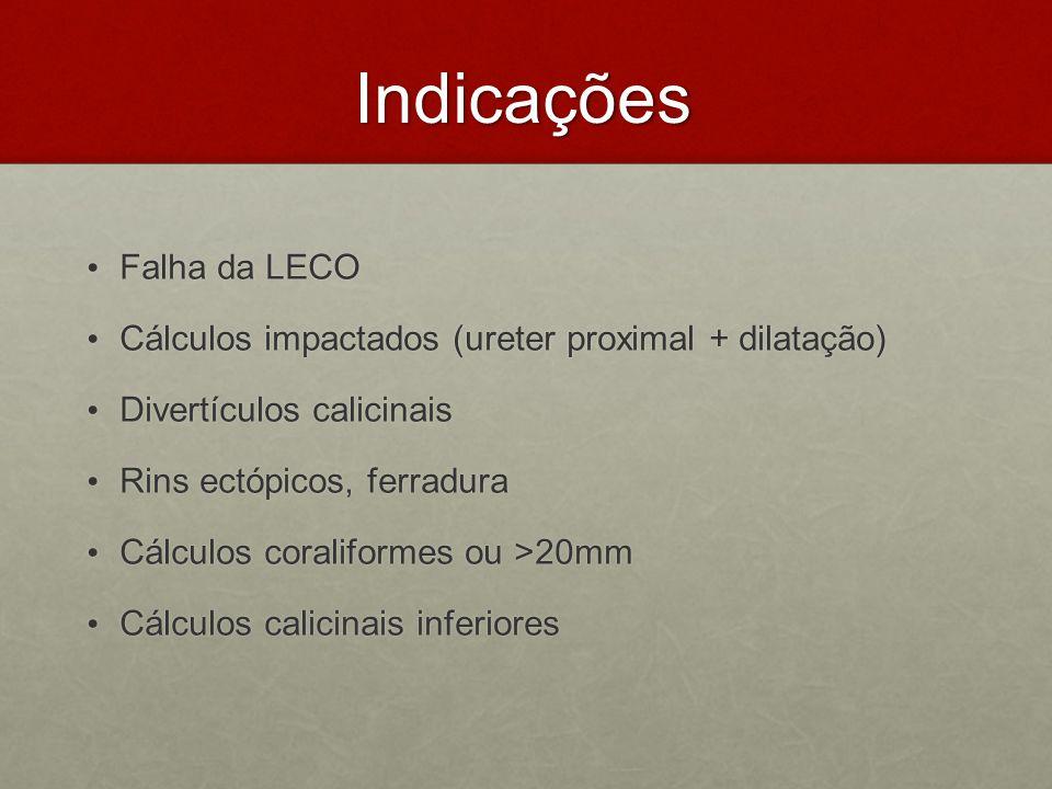 Indicações Indicações Falha da LECO Falha da LECO Cálculos impactados (ureter proximal + dilatação) Cálculos impactados (ureter proximal + dilatação)