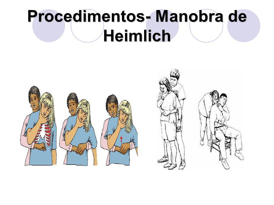 Procedimentos- Manobra de Heimlich