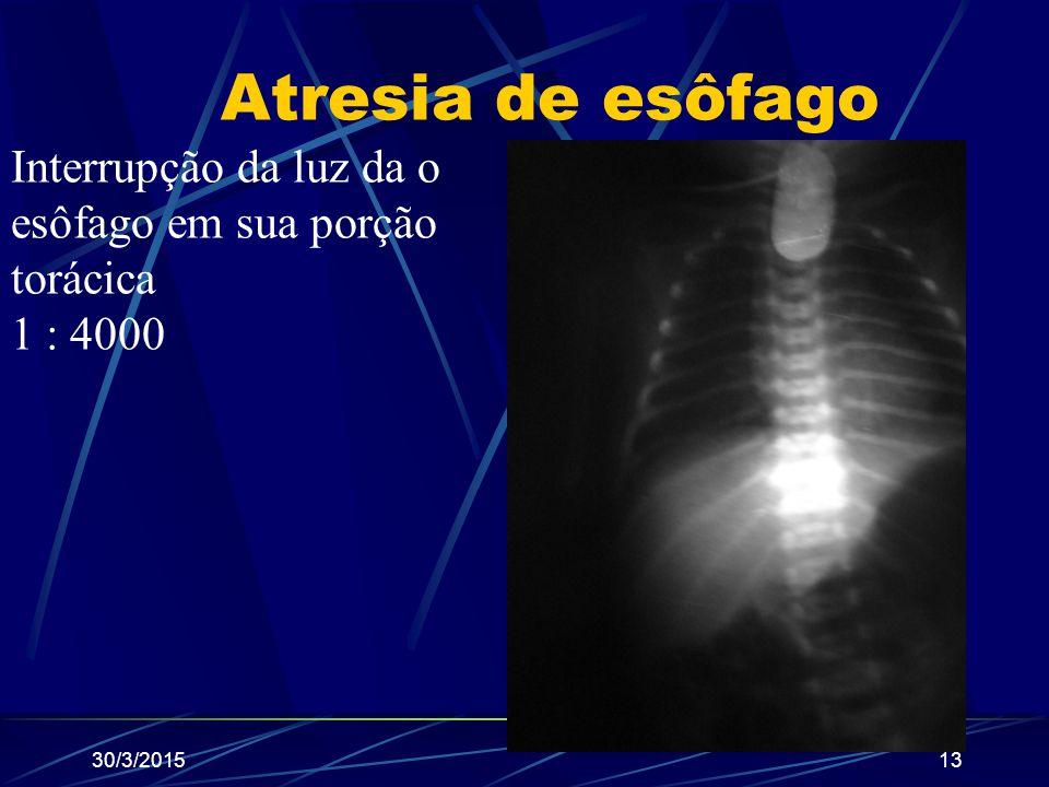30/3/201513 Atresia de esôfago Interrupção da luz da o esôfago em sua porção torácica 1 : 4000