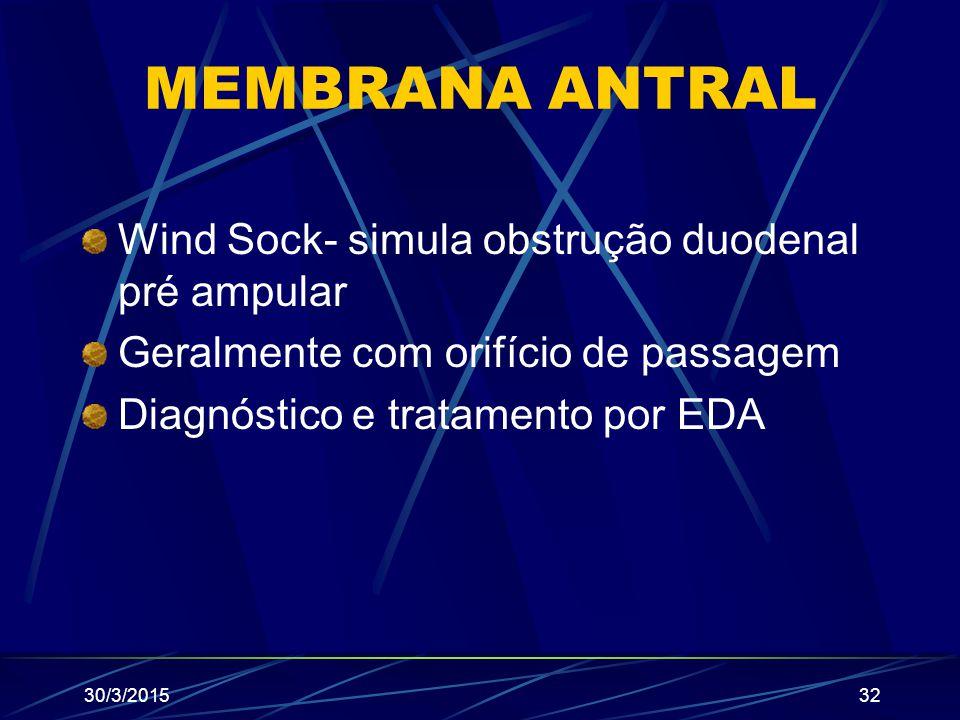 MEMBRANA ANTRAL Wind Sock- simula obstrução duodenal pré ampular Geralmente com orifício de passagem Diagnóstico e tratamento por EDA 30/3/201532