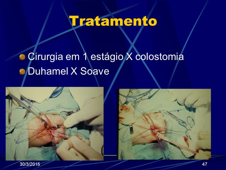 Tratamento Cirurgia em 1 estágio X colostomia Duhamel X Soave 30/3/201547