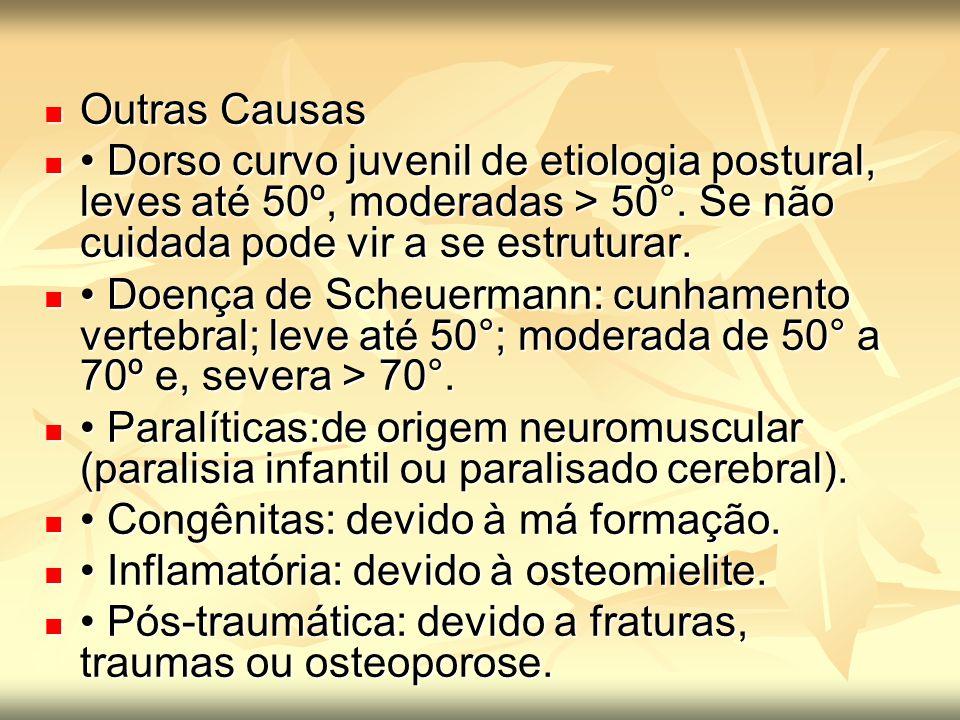 Outras Causas Outras Causas Dorso curvo juvenil de etiologia postural, leves até 50º, moderadas > 50°. Se não cuidada pode vir a se estruturar. Dorso