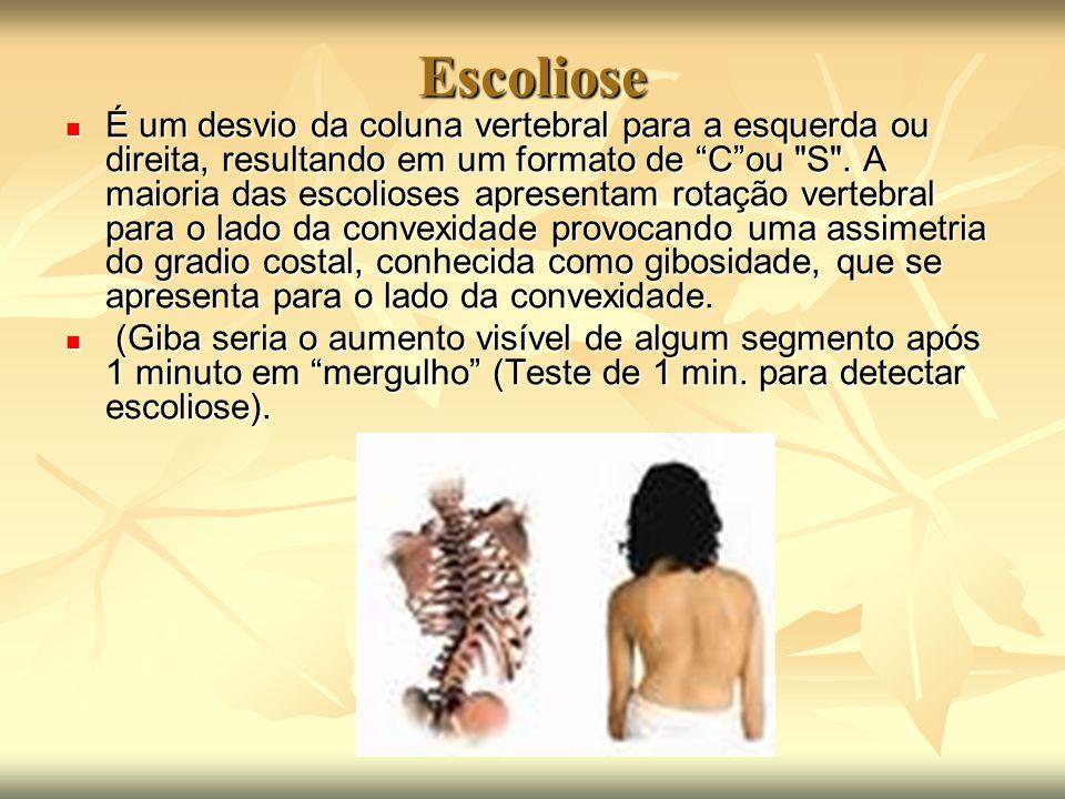 """Escoliose É um desvio da coluna vertebral para a esquerda ou direita, resultando em um formato de """"C""""ou"""