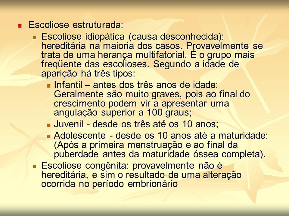 Escoliose estruturada: Escoliose estruturada: Escoliose idiopática (causa desconhecida): hereditária na maioria dos casos. Provavelmente se trata de u