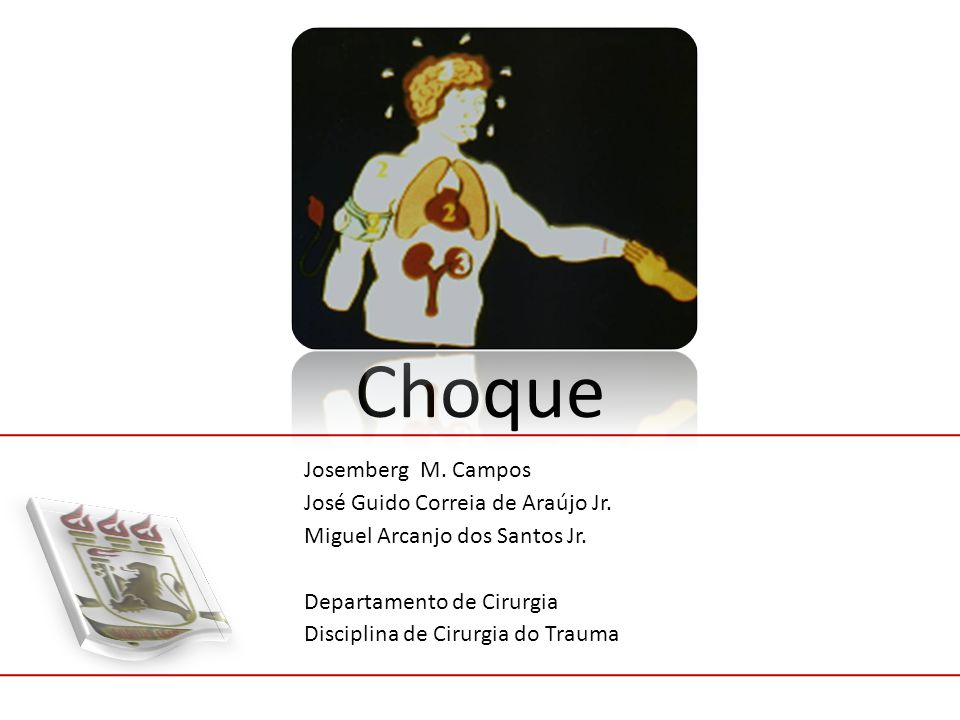 Choque Josemberg M. Campos José Guido Correia de Araújo Jr. Miguel Arcanjo dos Santos Jr. Departamento de Cirurgia Disciplina de Cirurgia do Trauma