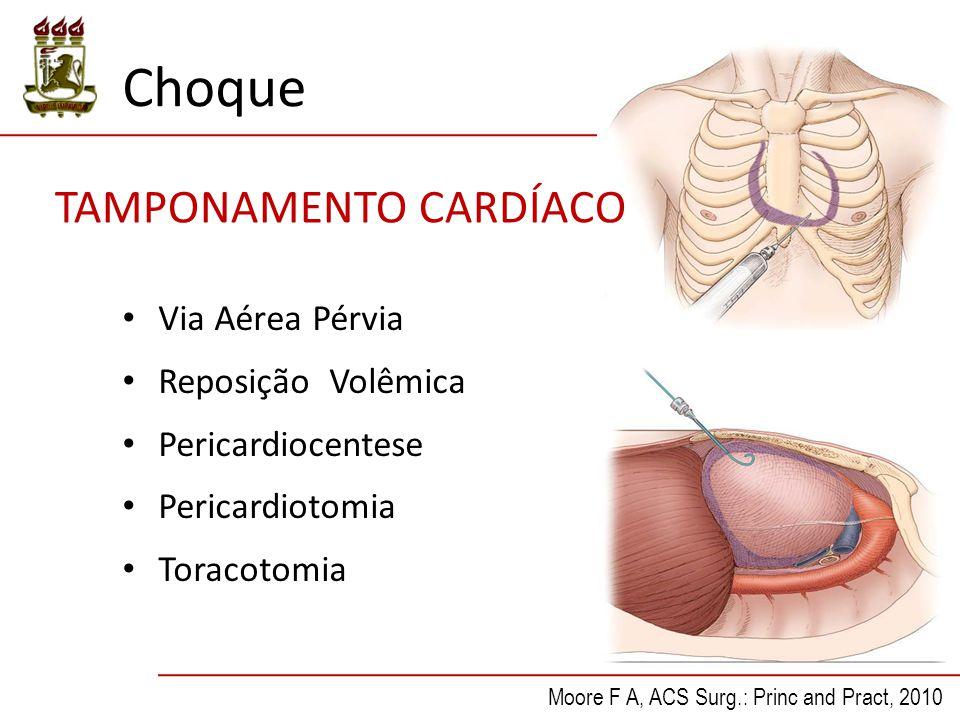 Via Aérea Pérvia Reposição Volêmica Pericardiocentese Pericardiotomia Toracotomia Moore F A, ACS Surg.: Princ and Pract, 2010 TAMPONAMENTO CARDÍACO Choque
