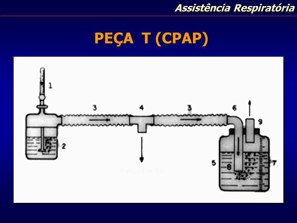 Assistência Respiratória PEÇA T (CPAP)