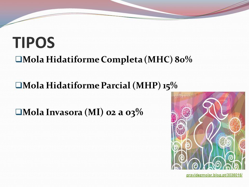 TIPOS  Mola Hidatiforme Completa (MHC) 80%  Mola Hidatiforme Parcial (MHP) 15%  Mola Invasora (M I) 02 a 03% gravidezmolar.blog.pt/3036016/