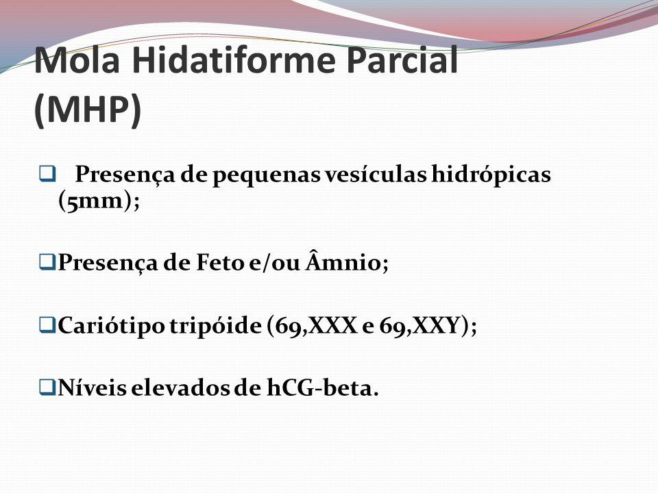 Mola Hidatiforme Parcial (MHP)  Presença de pequenas vesículas hidrópicas (5mm);  Presença de Feto e/ou Âmnio;  Cariótipo tripóide (69,XXX e 69,XXY);  Níveis elevados de hCG-beta.