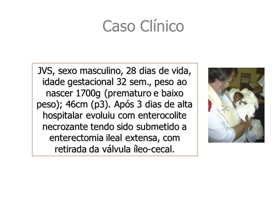 Caso Clínico JVS, sexo masculino, 28 dias de vida, idade gestacional 32 sem., peso ao nascer 1700g (prematuro e baixo peso); 46cm (p3).
