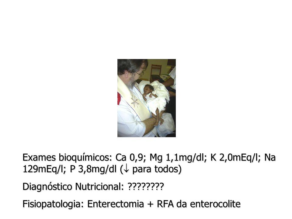 Exames bioquímicos: Ca 0,9; Mg 1,1mg/dl; K 2,0mEq/l; Na 129mEq/l; P 3,8mg/dl (  para todos) Diagnóstico Nutricional: ???????.