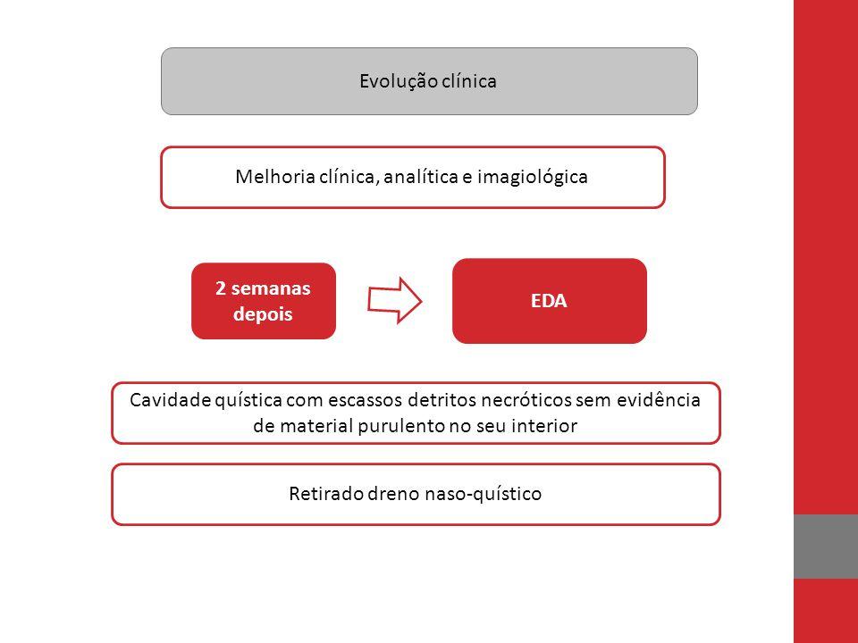Evolução clínica 2 semanas depois Melhoria clínica, analítica e imagiológica EDA Cavidade quística com escassos detritos necróticos sem evidência de m