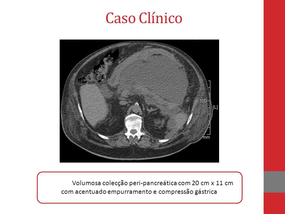 Caso Clínico colecção Volumosa colecção peri-pancreática com 20 cm x 11 cm com acentuado empurramento e compressão gástrica