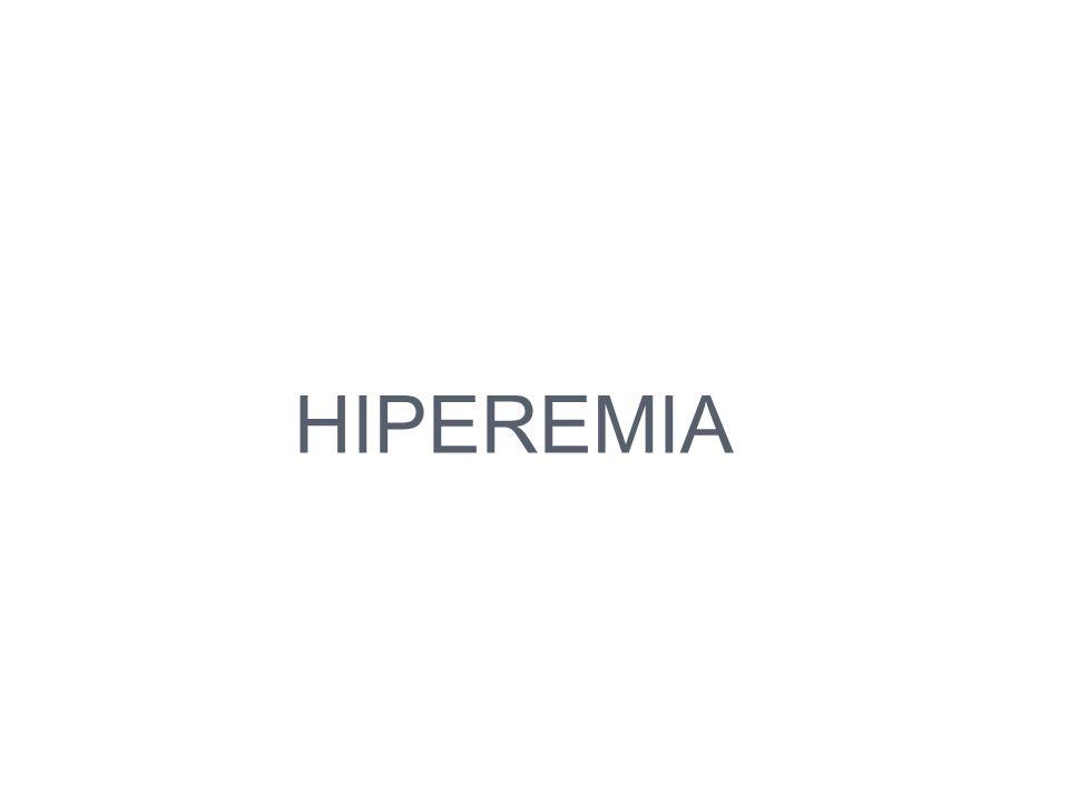 HIPEREMIA