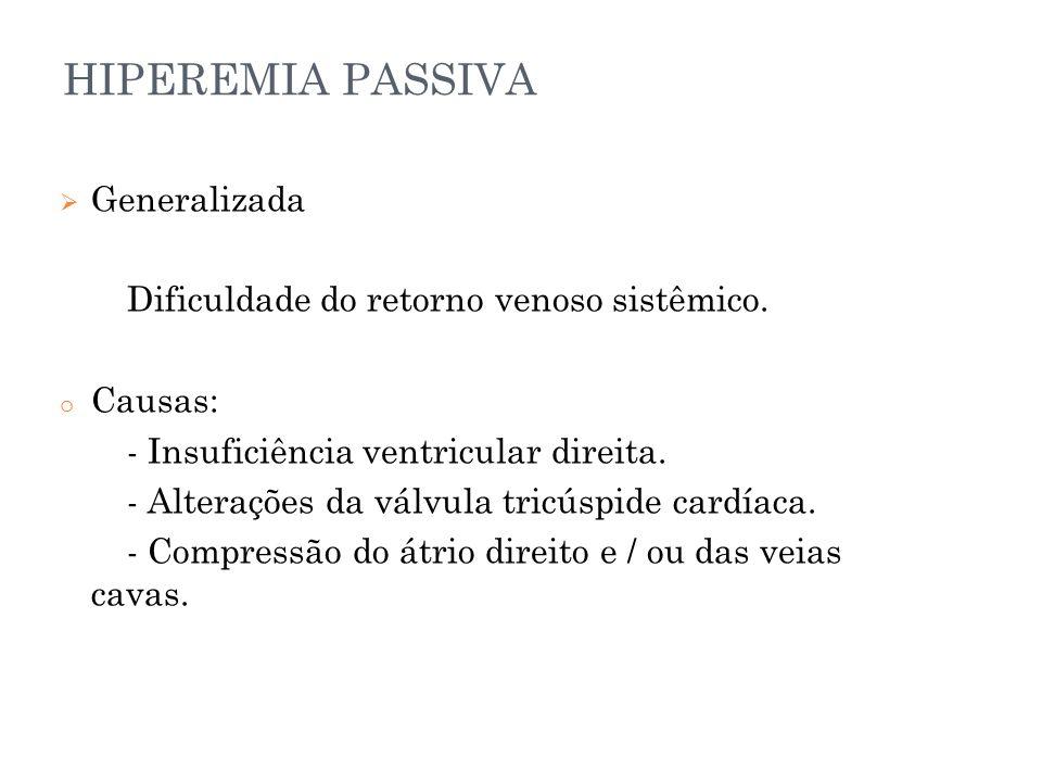 HIPEREMIA PASSIVA  Generalizada Dificuldade do retorno venoso sistêmico. o Causas: - Insuficiência ventricular direita. - Alterações da válvula tricú