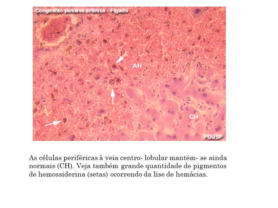 As células periféricas à veia centro- lobular mantém- se ainda normais (CH). Veja também grande quantidade de pigmentos de hemossiderina (setas) ocorr